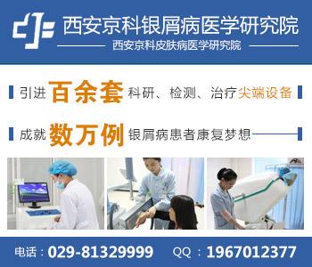 西安专业治牛皮癣的医院