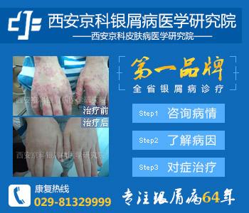 西安专业治疗牛皮癣的医院