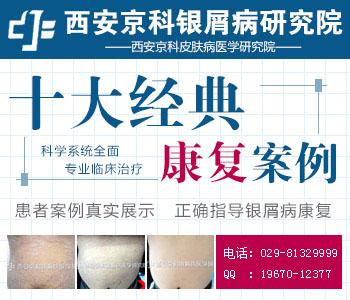 陕西牛皮癣治疗权威医院