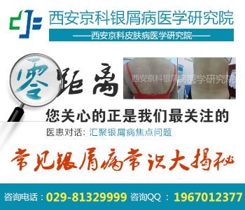 西安专业治疗银屑病的医院